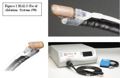 HALO Focal Ablation System (90)